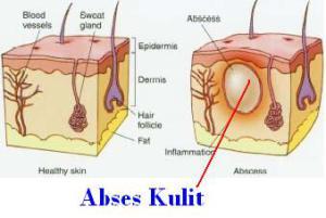 abses-kulit